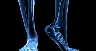 10 Ways to Build Better Forefoot and Midfoot Power